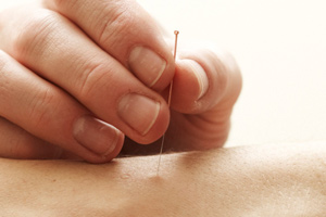 acupuncture, chinese master, herbal, herbs